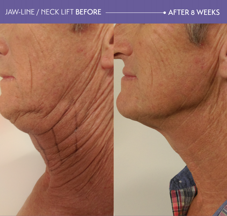 Before After HIFU neck lift | Non Invasive Facials for Aging Skin