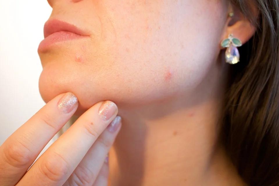 Can LED Light Help Acne?